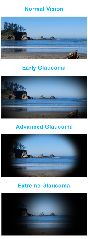 glaucoma-meaning-symptoms-causes-treatment