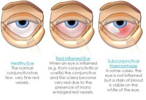 Eye Infections And Eye Allergies