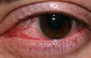 infections and allergies