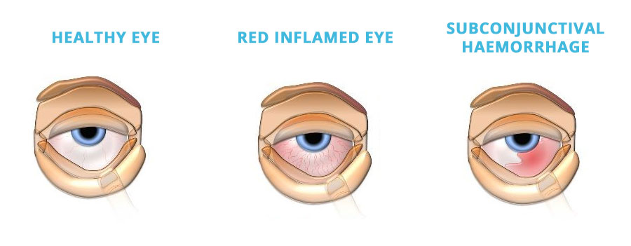 eye-Infections