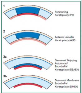 types-of-corneal-transplants
