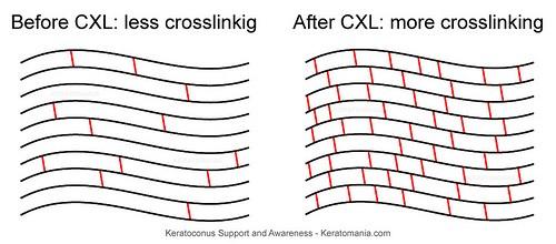 c3r-surgery-cost.jpg