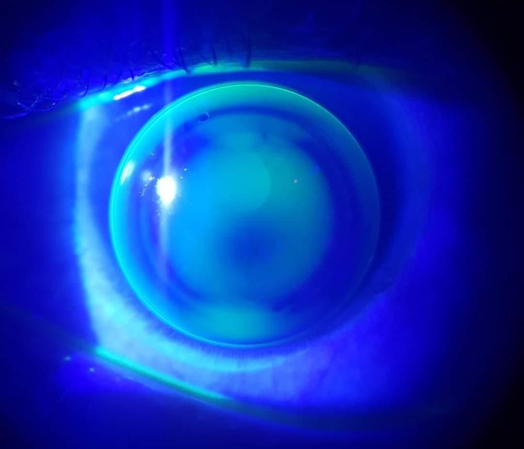 rose-k-lenses