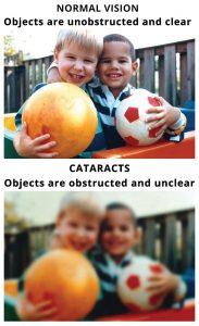 cataract-surgery-cost