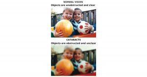 cataract-surgery-cost-social