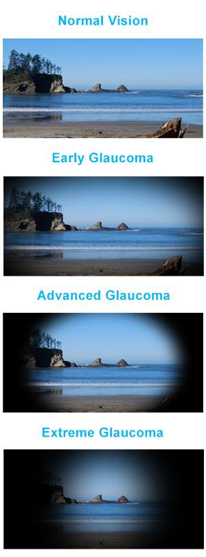 glucoma-symptoms-and-treatments