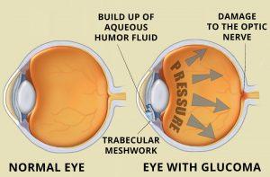 glucoma-treatment