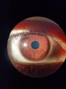 normal-eye-with-clear-cornea
