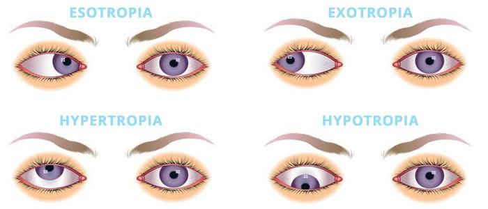 squint-eye-treatment