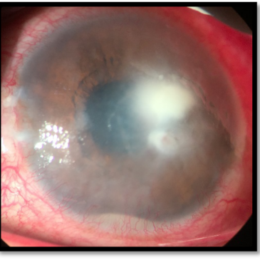 What is Corneal Ulcer?